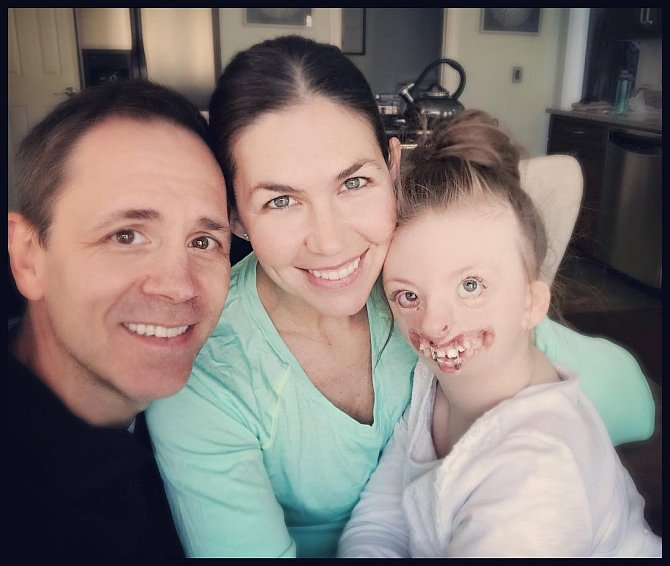 Rodiče Sophii milují stejně jako dvě mladší a zdravé děti.