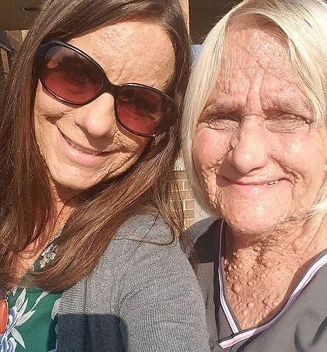 Libby se svou matkou, po které onemocnění podědila.