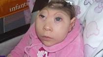 Je znám případ dívenky, kterou lékaři označují jako Baby K, která přežila dva a půl roku. Měla totiž vyvinuty ty části mozku, které jsou potřeba pro přežití. Přesto ale musela být neustále v péči lékařů, jinak by nepřežila.