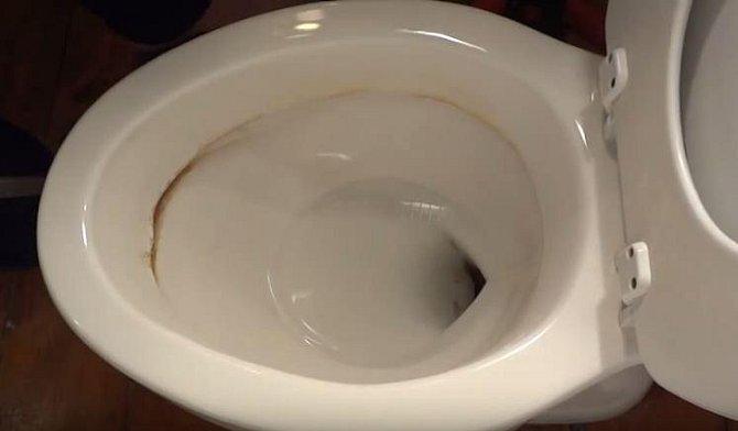 I takto zašpiněný záchod můžete vyčistit tak, že bude vypadat jako nový.
