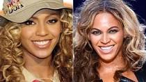 Celebrity, které podstoupily plastiku nosu - Beyoncé Knowles