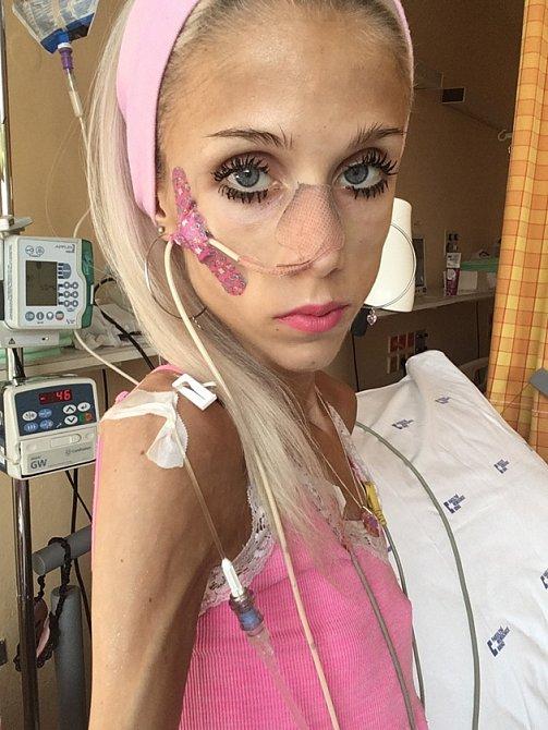 Natálie se dostala na kritickou váhu 22 kilogramů, proto byla několik týdnů hospitalizována.