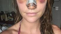 Rhiannon týden po operaci.