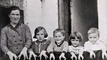 A toto je celá rodina, ve které matka dětem předala gen se svou mutací. Všichni pak vystupovali jako Humří rodina.