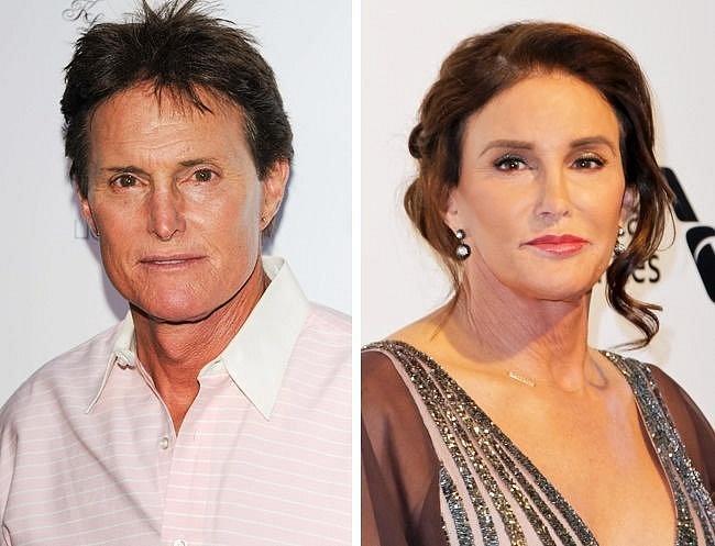 Caitlyn Jenner, 67: Ještě coby muž Bruce Jenner vyhrála Caitlyn desetiboj na Olympijských hrách v roce 1976. V 80. letech se rozhodla podstoupit hormonální terapii, aby se konečně mohla stát tím, kým se cítila být. Ovšem s terapií skon...