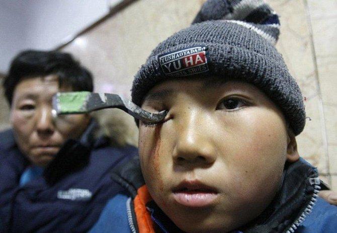 Třináctiletý čínský chlapec může děkovat štěstěně, že tuto nehodu přežil! Během hraní na školním hřišti, upadl a nabodl se na kovový hák. Ten zůstal jen 2 milimetry od mozku, který tak naštěstí neporanil.