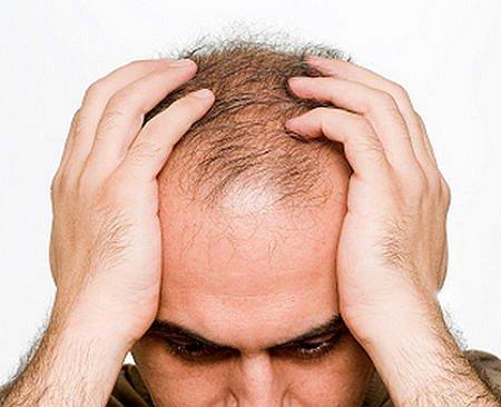 Řešení padání a řídnutí vlasů