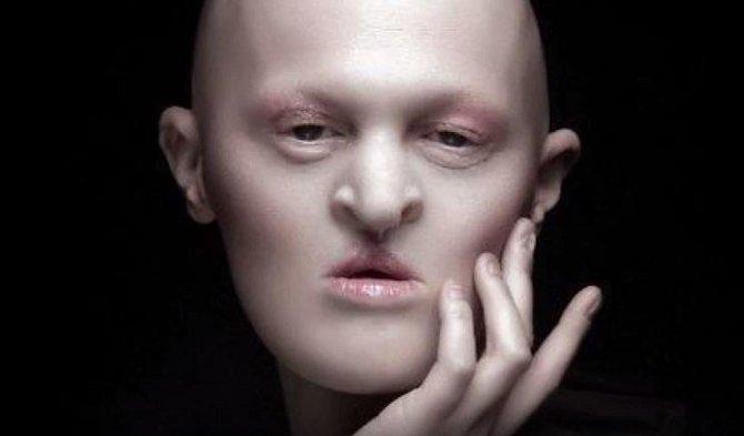 Melanie Gaydos je vskutku jiná... Tato modelka se narodila s nevyléčitelnou nemocí, která napadá její nehty, vlasy, ale i zuby. Přesto, že se některým z pohledu na ní dělá nevolno, jí se plní diář...
