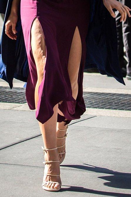 Je nádherná a vypadá naprosto dokonale. V ostrém slunečním světle se však ukázalo, že ani božské modelce Victoria's Secret, Lily Aldridge, se nevyhla celulitida a ochablá kůže na stehnech.