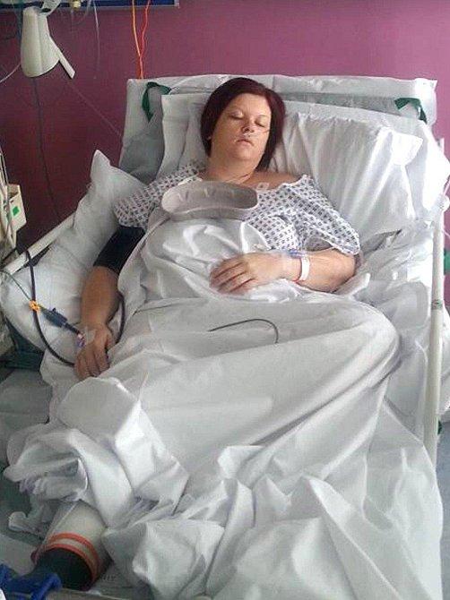 Gemma si nechala chirurgicky podvázat žaludek, zjednodušeně se do ní teď už nevejde tolik jídla.