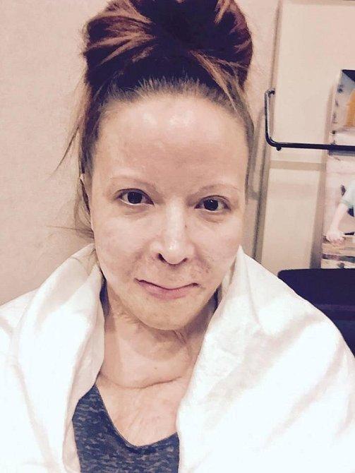 Audrey Mabrey manžel PRAŠTIL KLADIVEM DO HLAVY A ZAPÁLIL! Žena děsivý útok přežila...