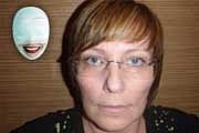 Jiřina V. - soutěžící o Plastickou proměnu