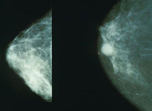 Rakovina prsu, Mamograf