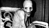 Jedna z nejhorších fotografií člověka po tzv. Ruském experimentu