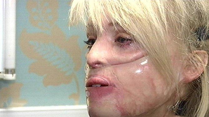 Po některých zákrocích musela nosit speciální masku, která jí držela kůži na těle pohromadě.