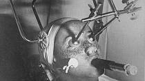 Odstraňování pih pomocí oxidu uhličitého. Přístroj zároveň chrání oči, v nose jsou ucpávky a žena musí dýchat přes speciální trubičku.