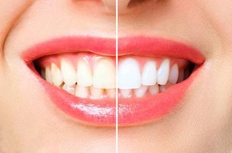 Bílé zuby domácí metodou