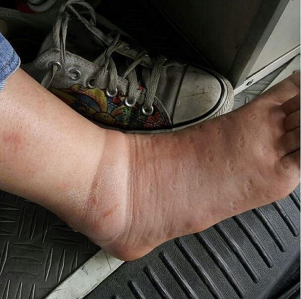 Otok nohy po bodnutí hmyzem.
