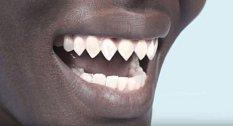 """Tyto zuby mají připomínat chrup žraloků a bez této """"ozdoby"""" by v tomto kmeni nebyli muži pravými muži."""