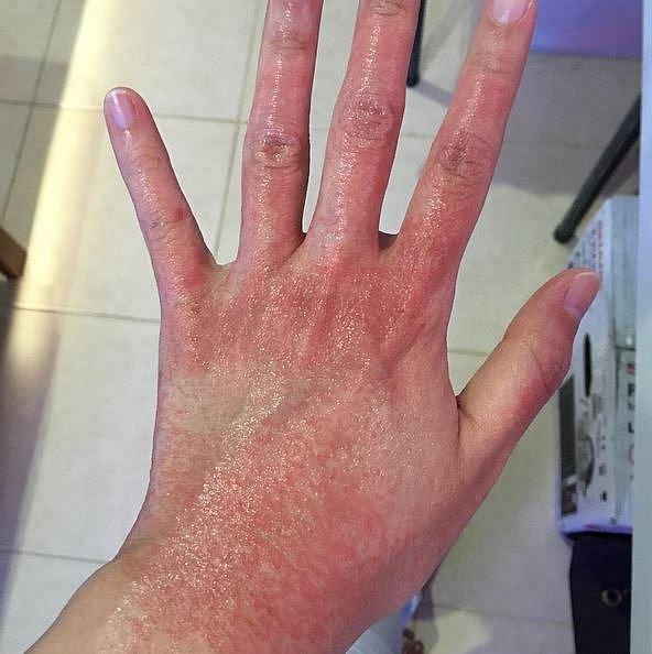 Alergie na čistící prostředky.