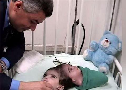 Manar Maged se narodila s onemocněním zvaném Craniopagus Parasiticus, což znamená, že jde vlastně o jedince, kterému z hlavy vyrůstá hlava jeho parazitického dvojčete, tomu se ale nevyvíjí tělo. Manar prodělala operaci, kdy jí byla hla...