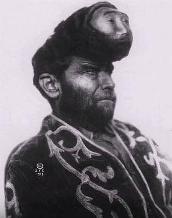Pasqual Penon pocházel z Mexika a v cirkusu předváděl své dvě hlavy.