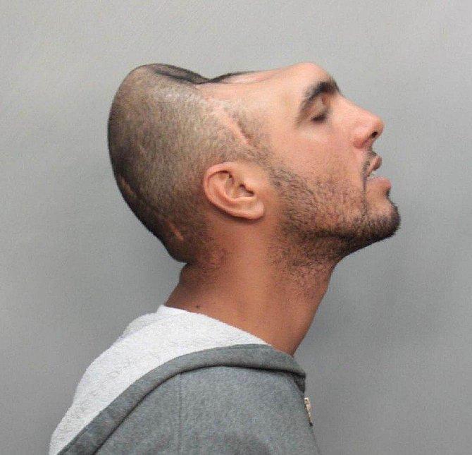 Carlos Rodriguez - Přišel o čtvrtinu lebky a mozku
