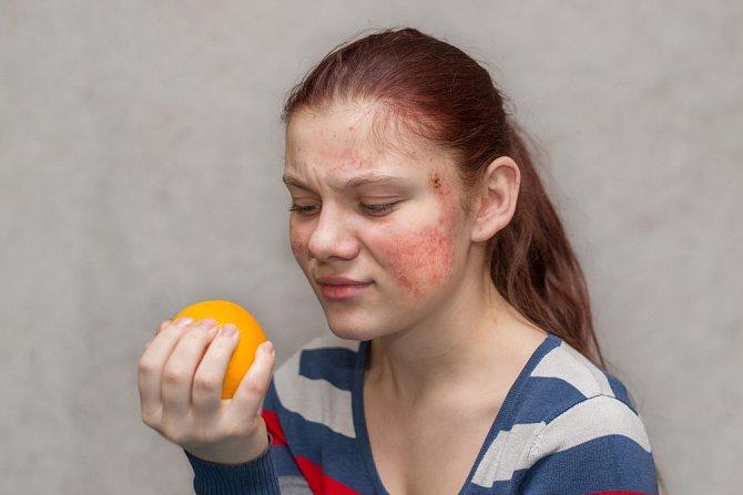 Citrusy byste měli při atopickém ekzému omezit.