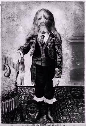 Stephan Bibrowsky vystupoval jako Muž se lví tváří. Zemřel ve svých 42 letech, celý život strávil v cirkuse.