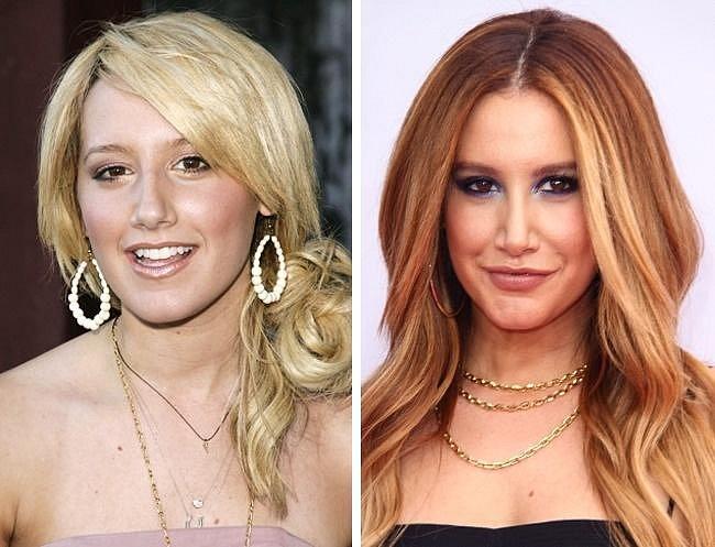 Ashley Tisdale, 32: Tato herečka nikdy nepřiznala plastickou operaci, vyjma operace nosu, který si ale prý musela nechat upravit, aby se jí lépe dýchalo... Ashley má ale také evidentně zvětšené rty a zřejmě i upravený tvar brady.
