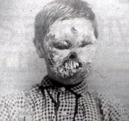 Chlapec, u kterého došlo během porodu o přenos syfilisu. Podobně postiženým pomohl vynález penicilinu.