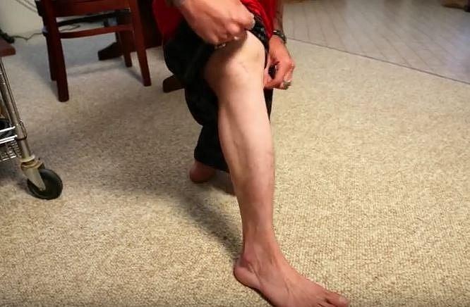Nathan nema stehenní kost, kolena mu vyrůstají rovnou z kyčle.