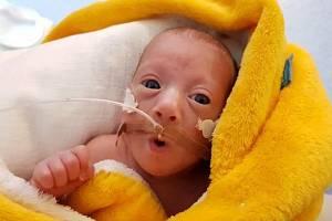 Ellenka se narodila předčasně. Minulý měsíc oslavila biologický rok!