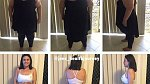 Žena si nechala odstranit 6 kg povislé kůže, vše poctivě dokumentovala