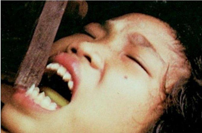 Sekání zubů
