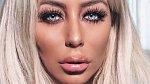 Aubrey O´Day: Zpěvačka, hvězdička sociálních sítí. Má evidentně nové poprsí, implantáty v zadku, novou bradu, tváře, nos, chodí pravidelně na botox... Aubrey je zkrátka někdo úplně jiný, ona ale i přesto žádný ze zákroků ni...