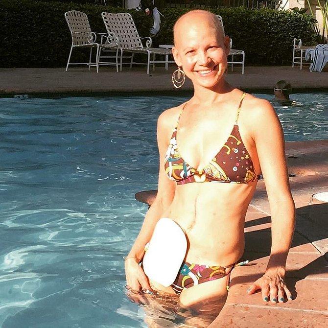 Emilee Garfield se neprala s rakovinou poprvé.