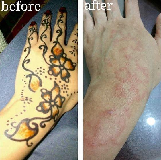 Alergická reakce po nanesení henny.