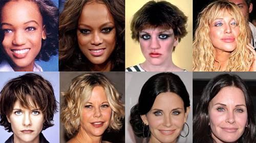 45 celebrit před a po plastických operacích které si pomohly a