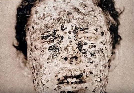 Epidemie neštovic v roce 1881…