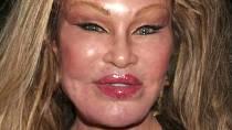 Jocelyn Wildenstein - 500 miliónů dolarů