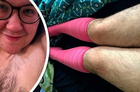 Leah Jorgensen (33) se se svým nadměrným ochlupením naučila žít a už jej neskrývá