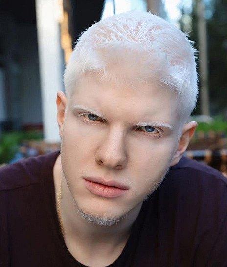 Albinismus byl dříve považován za něco nadpřirozeného.