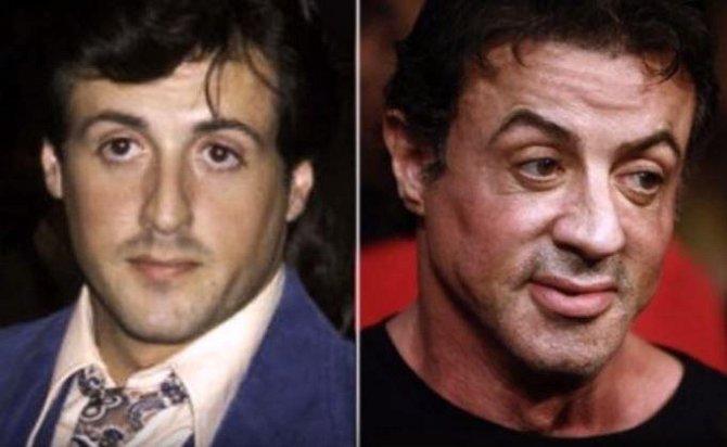 Sylvester Stallone bude mít brzy obočí až k vlasům, což je důsledek mnoha botoxových injekcí.