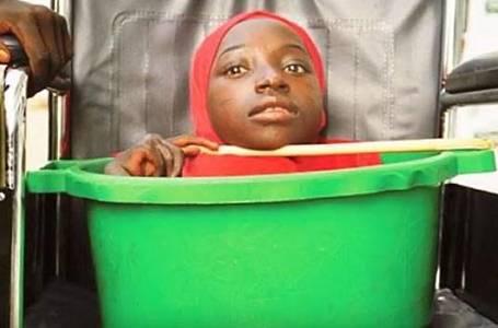 Rahma Haruna (19): Nemá ruce ani nohy a žije v plastovém lavoru