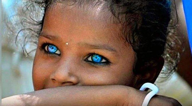 Světlé oči u afro-americké rasy nejsou výsledkem křížení s Indoevropany, je to stará genetická anomálie