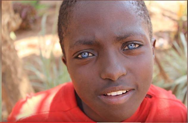 V některých afrických oblastech jsou lidé se světlýma očima odsouzeni žít na okraji společosti