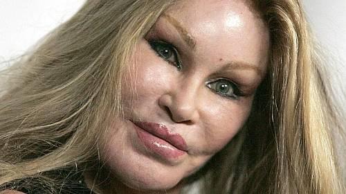 <p>Kočičí žena Jocelyn Wildensteinová (71) se zkrášlovacích zákrocích stala postupně závislá.</p>