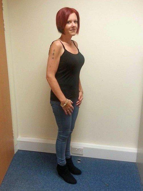 Gemma má štěstí, její kůže je natolik pevná, že na ní není hubnutí téměř patrné.
