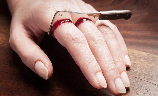 Nejděsivnější tresty, které mohla žena dostat za zapovězenou lásku - ilustrační foto - useknutí prstů